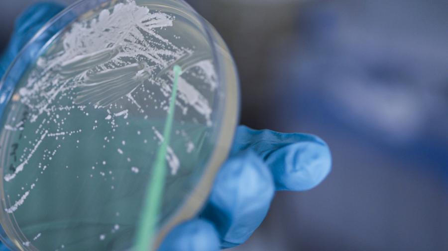 Mikrobeja tutkitaan petrimaljassa.